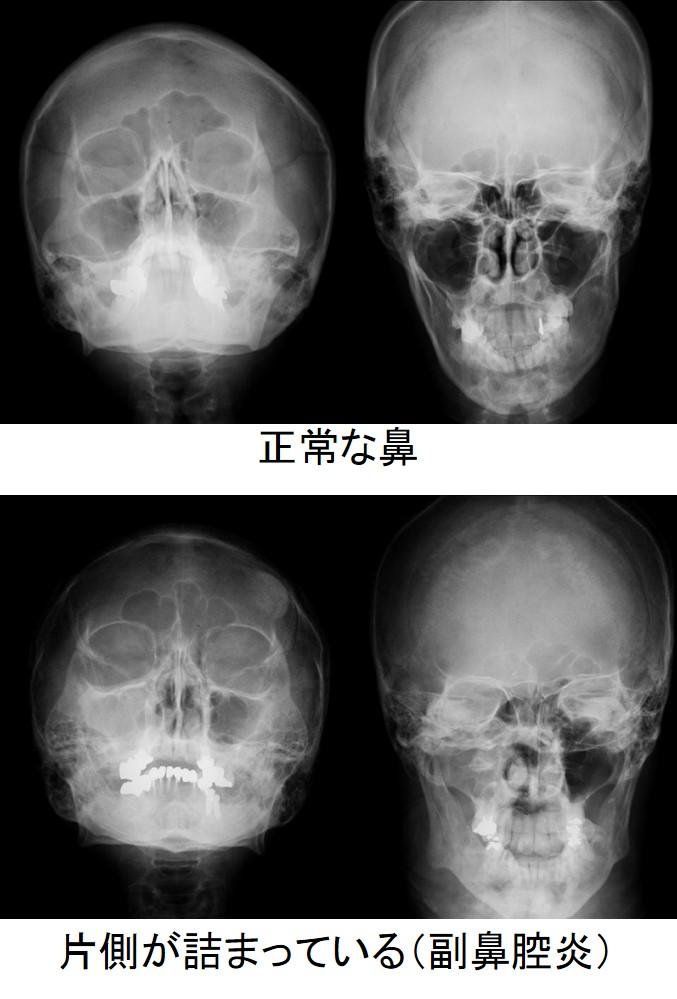 慢性 副 鼻腔 炎 手術