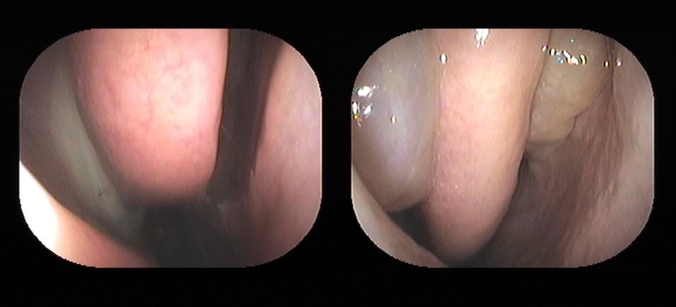副鼻腔炎・蓄膿症・鼻茸の治療は...