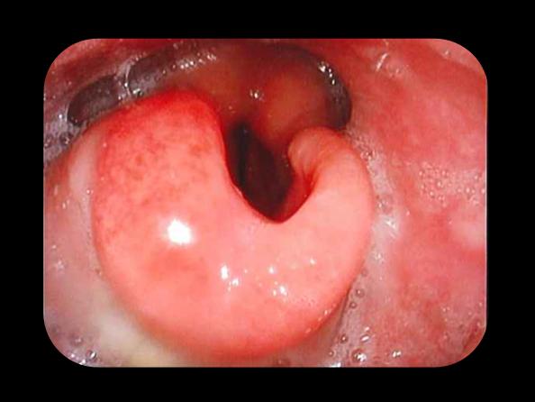 炎熱 咽頭